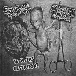 Gruesome Toilet / Melanocytic Tumors Of Uncertain Malignant Potential - 16 Weeks Gestation! mp3 flac download